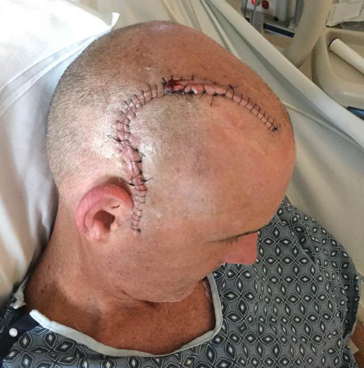 O'Donnell's friends and family view his scar as his signature mark -- a reminder, of sorts, about his strength and perseverance.